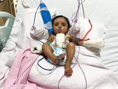 Baby Aditi. Image courtesy Sir HN Reliance Foundation Hospital